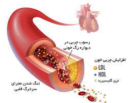 دانلود تحقیق مقابله با افزایش کلسترول خون
